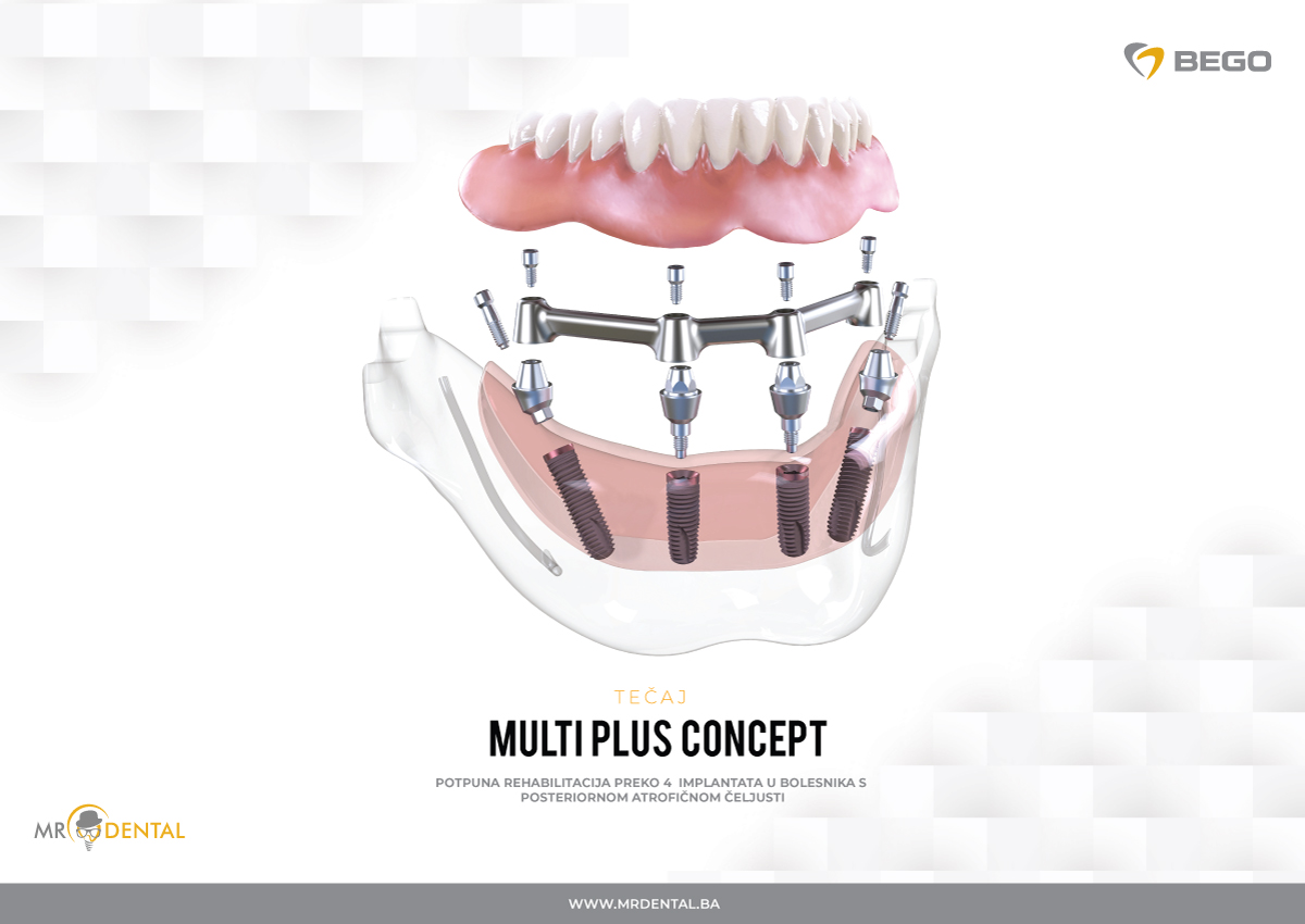 MULTI PLUS CONCEPT: TOTAL REHABILITATION OVER 4 IMPLANTS IN PATIENTS WITH POSTERIOR SECTOR ATROPHIC JAWS | MR DENTAL doo Bihać